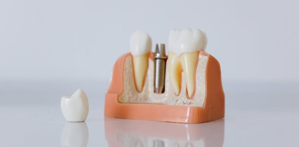 So gut sind moderne Zahnimplantate wirklich